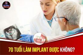 Tư vấn: 70 tuổi làm Implant được không? Bao nhiêu tiền và mất bao lâu?