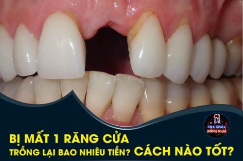 Bị mất 1 răng cửa trồng lại bao nhiêu tiền? Cách nào tốt?