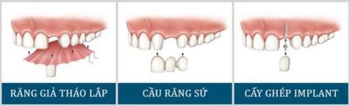 phương pháp trồng răng