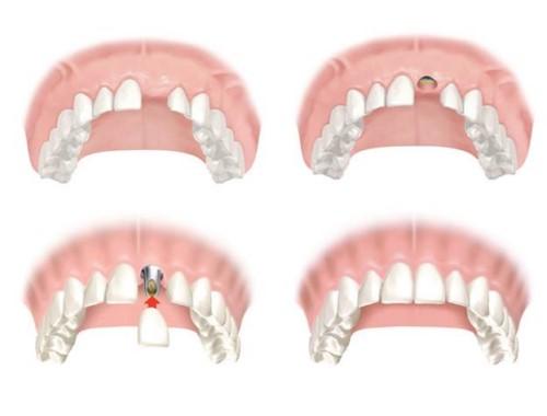 mô phỏng cấy ghép implant răng cửa