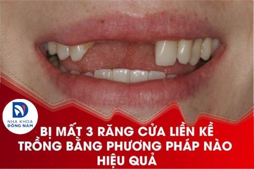 Bị mất 3 răng cửa liền kề trồng bằng phương pháp nào hiệu quả?