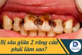 Bị sâu giữa 2 răng cửa phải làm sao?