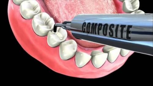 trám răng sâu bằng composite