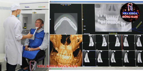 chụp phim kiểm tra răng miệng