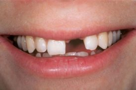 Bị thiếu 1 răng trồng theo phương án nào tốt?