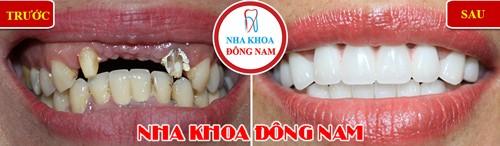 trồng răng bằng phương án bắc cầu sứ