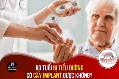 60 Tuổi bị tiểu đường có cấy Implant được không?
