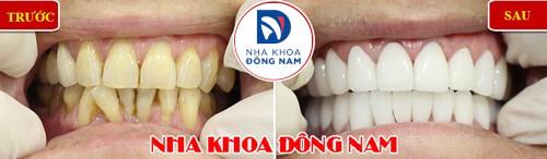 bọc sứ cho răng bị tụt nướu