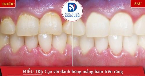 cạo vôi răng điều trị viêm nướu