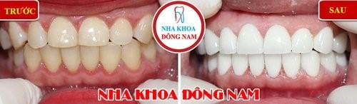 đắp răng sứ cho răng ố vàng