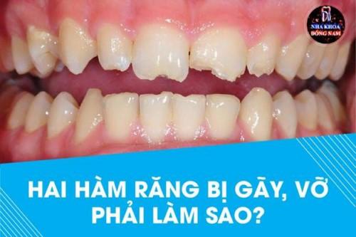 Hai hàm răng bị gãy hết phải làm sao?