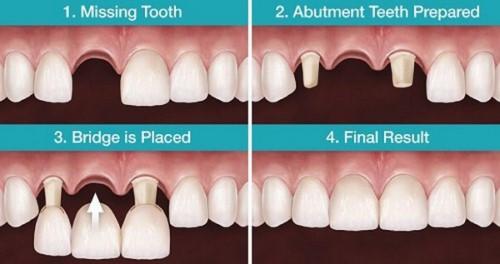 mô phỏng bắc cầu răng sứ
