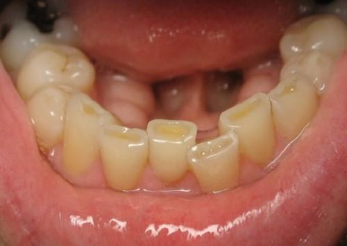 hiện tượng mòn răng