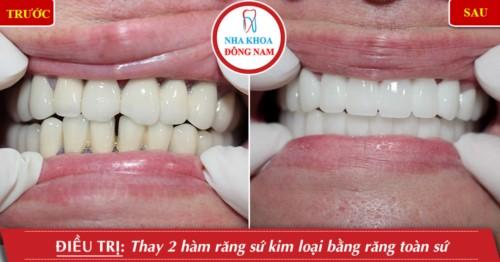 làm răng sứ nguyên hàm