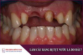 Làm cầu răng bị tụt nướu là do đâu?