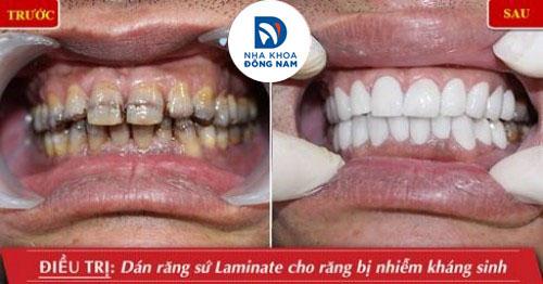 dán răng sứ cho răng bị nhiễm kháng sinh