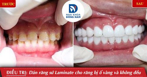 làm mặt dán sứ cho răng ố vàng