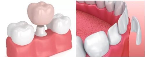 mài răng làm mặt dán sứ