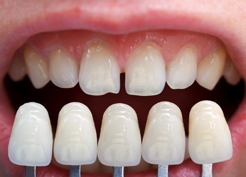 so màu răng