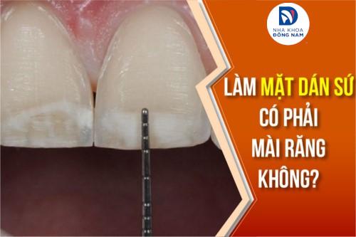 Làm mặt dán sứ có phải mài răng không?