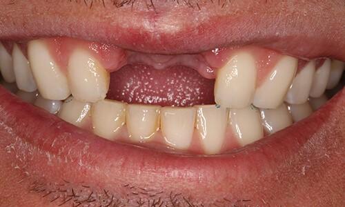 Mất 2 răng cửa cấy Implant hết bao nhiêu tiền