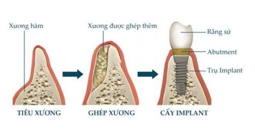 cấy ghép xương trong implant