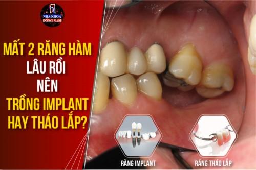 Mất 2 răng hàm lâu rồi nên trồng Implant hay tháo lắp