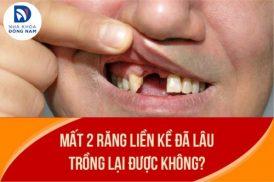 Mất 2 răng liền kề đã lâu trồng lại được không?