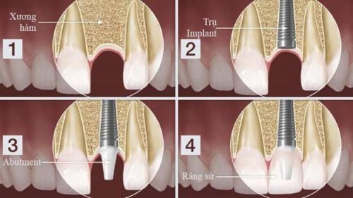 mô phỏng cấy ghép implant