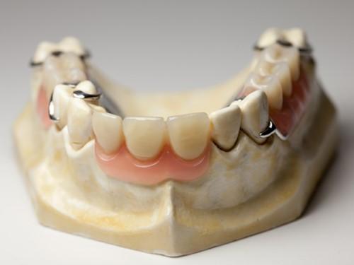 phục hình răng giả tháo lắp