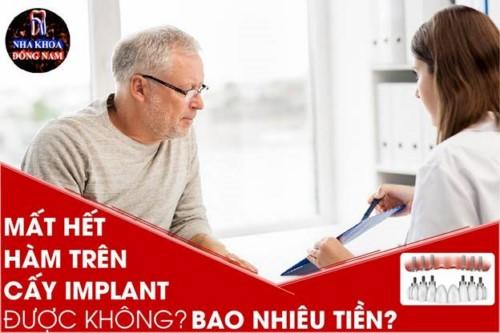 Mất hết hàm trên cấy Implant được không? Bao nhiêu tiền?