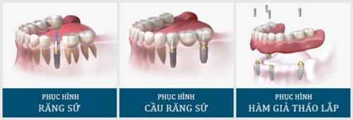các dạng phục hình răng implant
