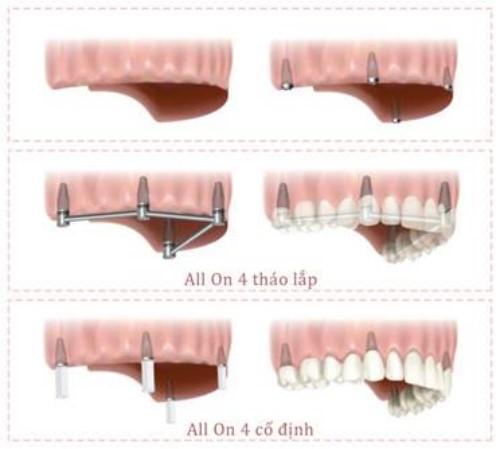 giải pháp cấy implant nguyên hàm