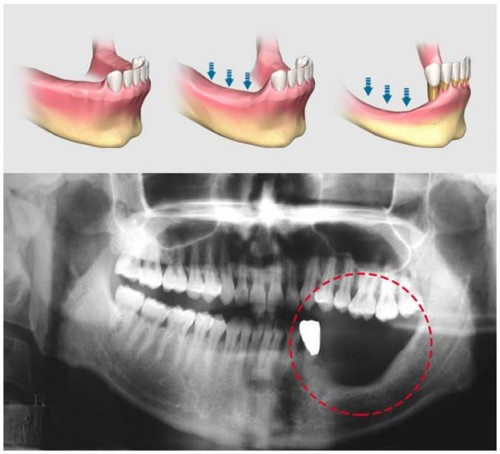 tiêu xương hàm do mất răng