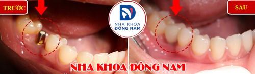 cấy ghép implant răng hàm dưới