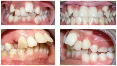 răng hô chìa