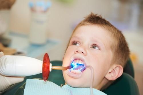 trám răng sữa bị sâu