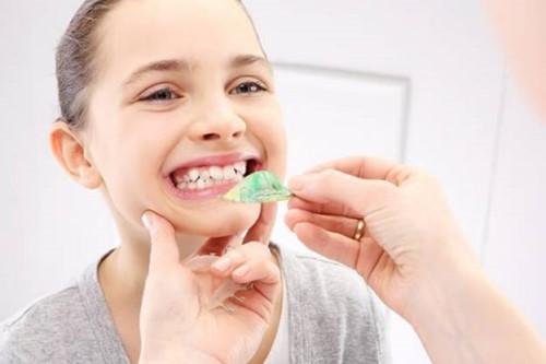 điều trị răng mọc lệch