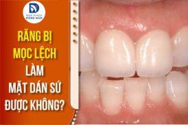 Răng bị mọc lệch làm mặt dán sứ được không