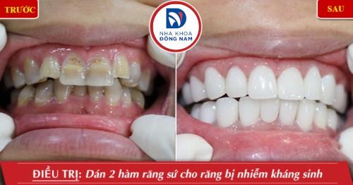 làm mặt dán sứ cho răng nhiễm màu