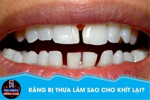 răng bị thưa làm sao cho khít lại