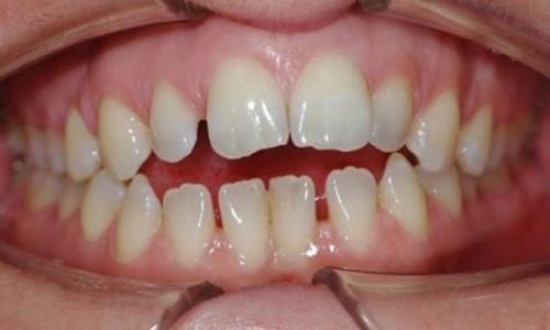 hàm răng thưa