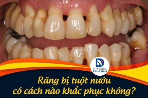Răng bị tụt nướu có cách nào khắc phục không?