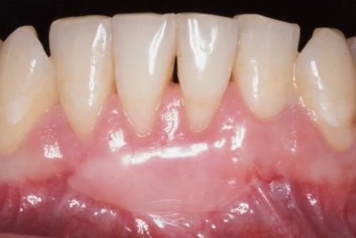 tái tạo nướu răng