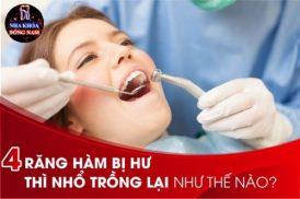 4 Răng hàm bị hư thì nhổ trồng lại như thế nào?