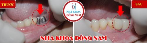trồng răng hàm bằng implant