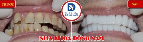 bọc sứ 2 hàm cho răng mọc lệch