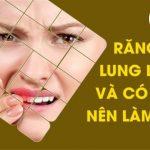Răng lung lay và có mủ nên làm gì?