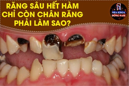 Răng sâu hết hàm chỉ còn chân răng phải làm sao?
