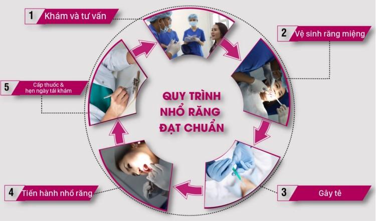 quy trình nhổ răng không đau